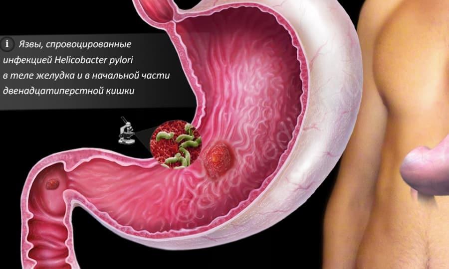 Альмагель назначается докторами для терапии язвы желудка и двенадцатиперстной кишки