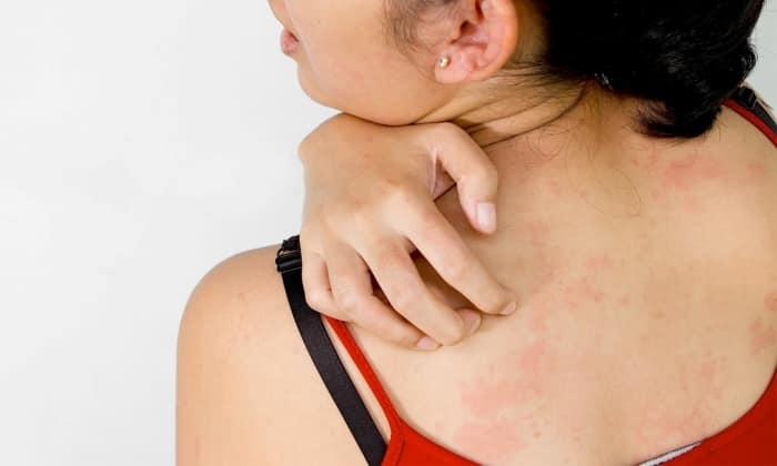 Прием Энзистала-П может вызвать аллергические проявления