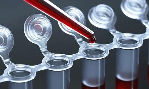Высокий уровень билирубина в крови является противопоказанием к приему таблеток