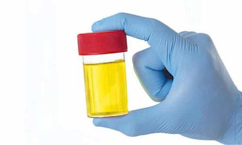 Продукты распада лекарства выводятся с мочой