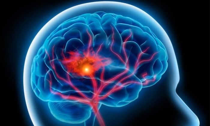 Мексидол назначается при нарушении кровоснабжения головного мозга