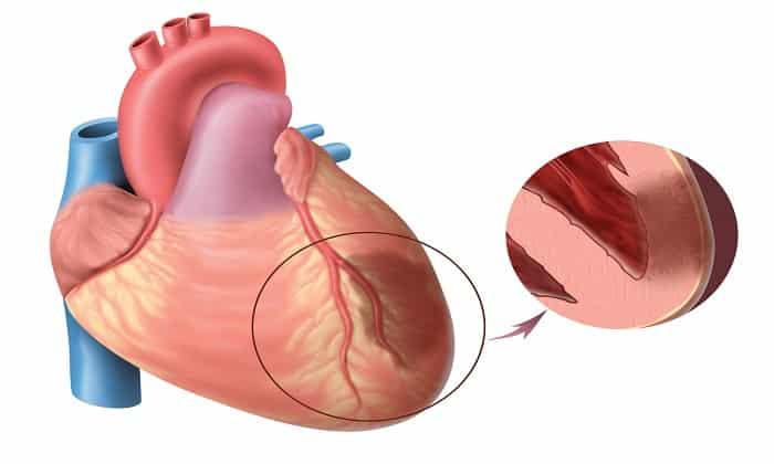 Мексифин применяется при обострении инфаркта миокарда