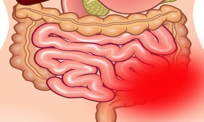 Препарат противопоказан при непроходимости кишечника