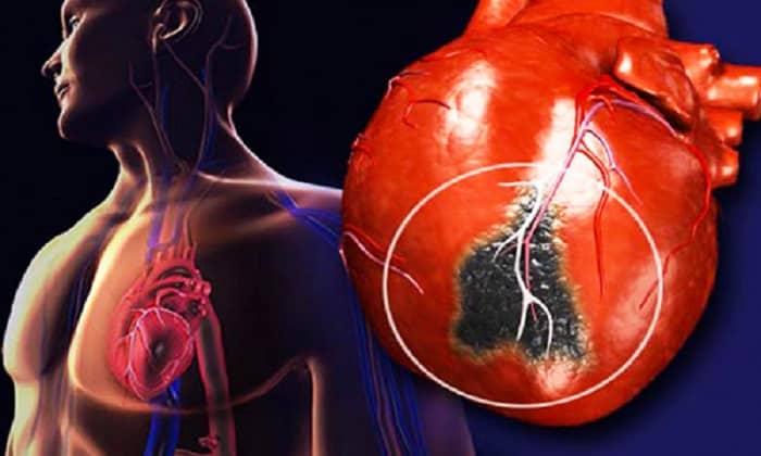 Мексидол показан при ишемической болезни сердца, т.к. действующее вещество препарата улучшает кровоснабжение тканей