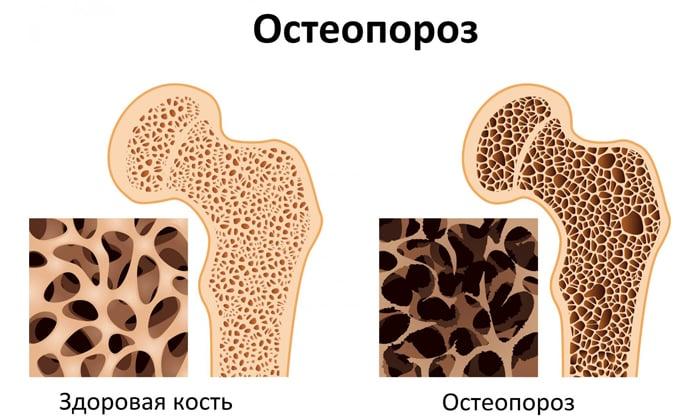 Регулярное применение препарата улучшает состояние костей у людей с остеопорозом