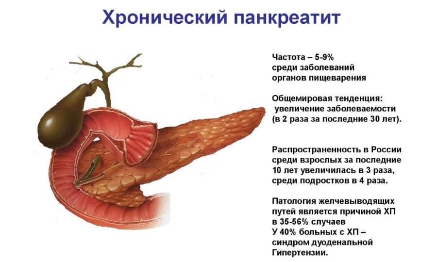 Альмагель незаменим при лечении панкреатита