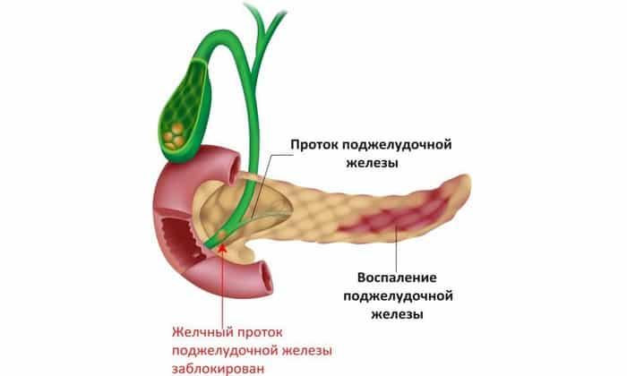 Мебеверин показан при остром панкреатите