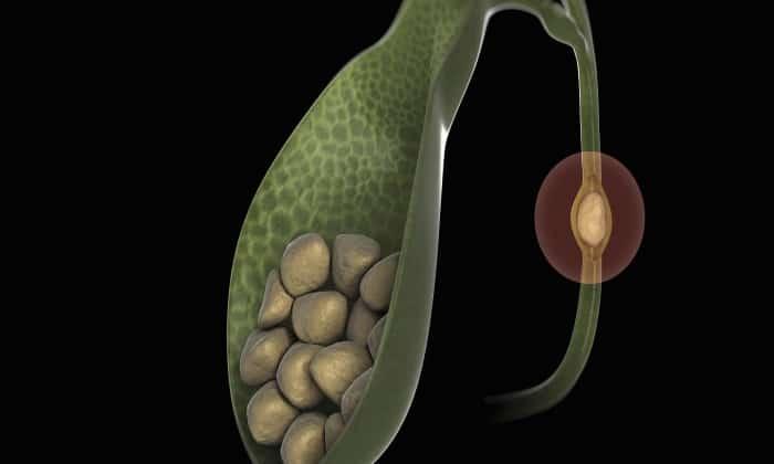 Приведенные медикаменты нельзя использовать при камнях и в желчном пузыре