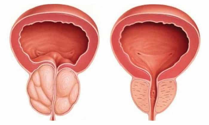 Противопоказан прием препарата при гиперплазии простаты