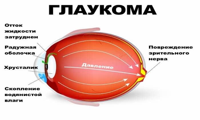 Препарат не назначают при глаукоме
