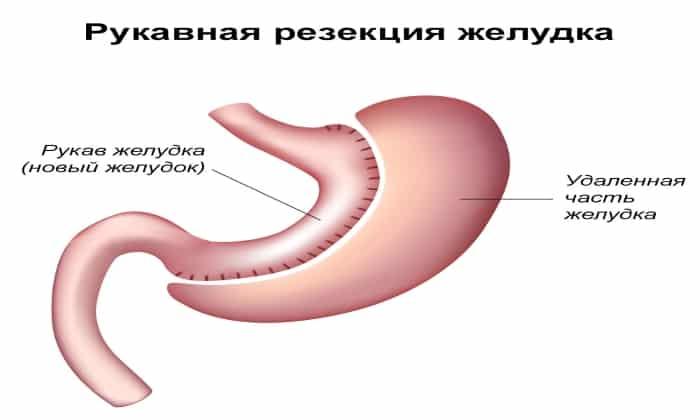 Оба препарата применяются при частичная или полная резекция органов ЖКТ