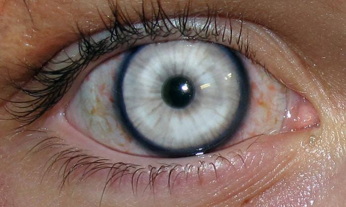Применение в офтальмологии: как глазные капли посредством электрофореза