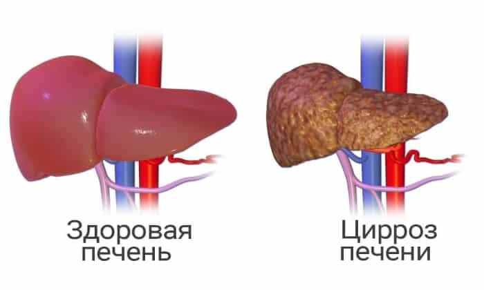Препарат назначают для лечения цирроза печени
