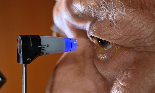 Препарат противопоказан при закрытой глаукоме