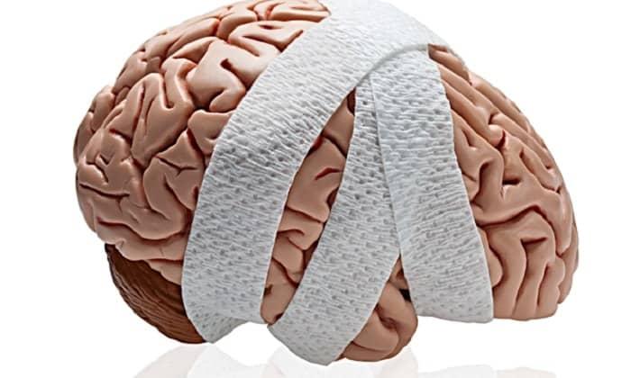 Мексидол назначается при черепно-мозговых травмах