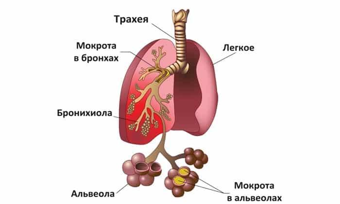 Тяжелые формы пневмонии и туберкулеза - 3 капельницы Ронколейкина в разовой дозе 0,5 мг с соблюдением временных промежутков в 2 суток