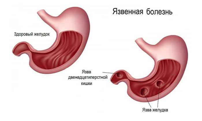 Показанием к применению Мебеверина могут быть спазмы желудочно-кишечного тракта при язвенной болезни желудка