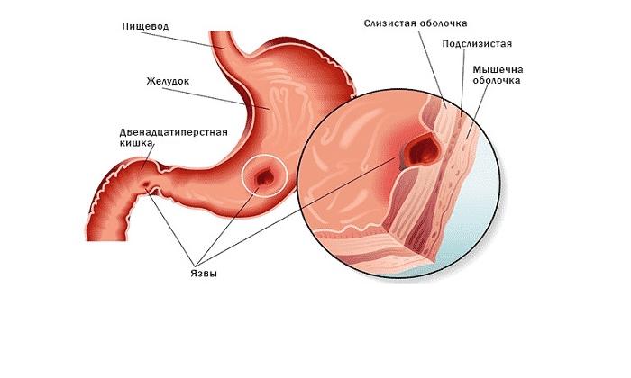 Препараты показаны при язвенных поражениях желудка