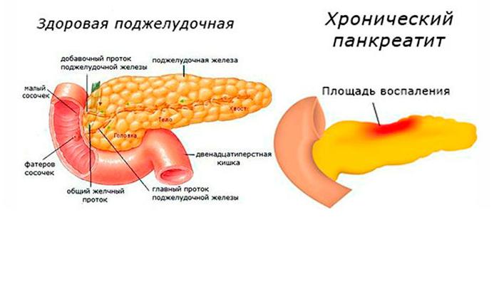Мексидол назначают для лечения панкреатита