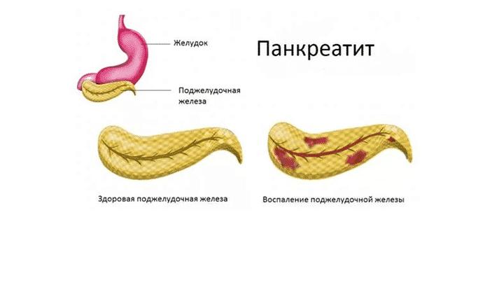Препарат показан для лечения панкреатита