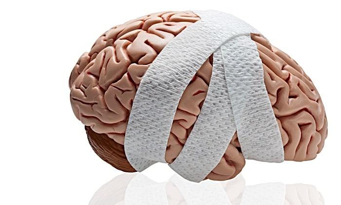 Препараты прописывают при черепно-мозговых травмах