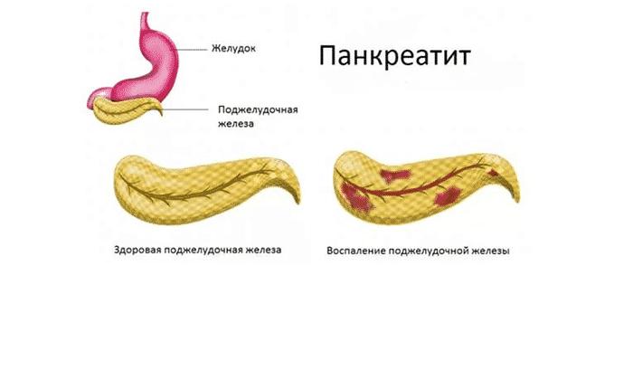 Тримедат часто прописывают при панкреатите в хронической и острой форме