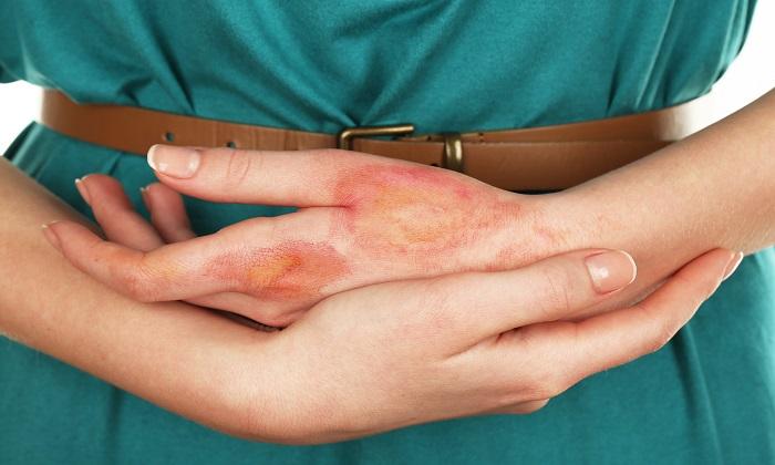 Актовегин применяется в лечении ран и ожогов
