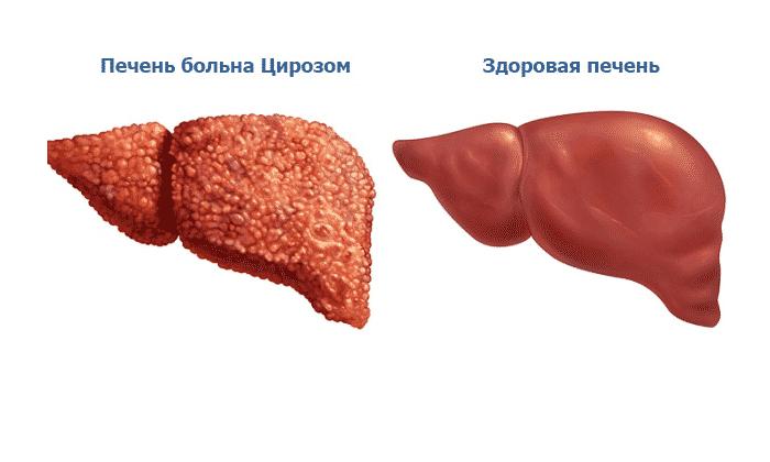 Нельзя применять в лечении рассматриваемые препараты, если имеется цирроз печени
