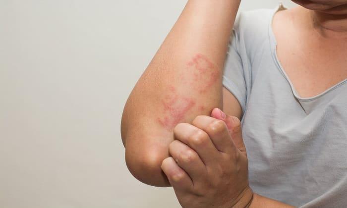 Мексидол может вызвать аллергическую реакцию