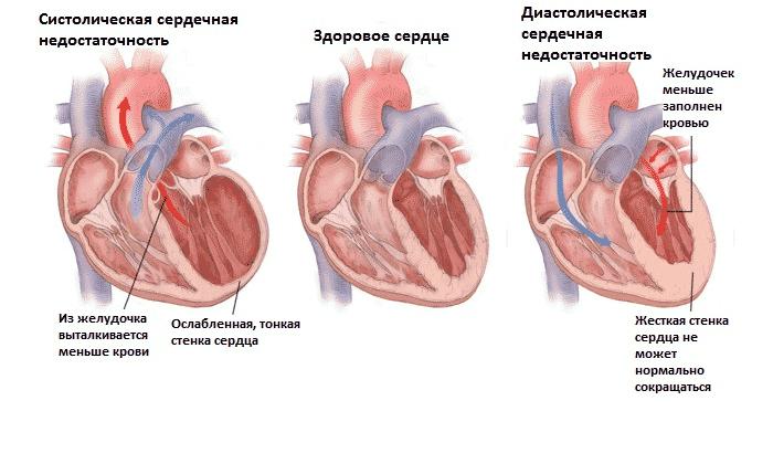 Оба препарата противопоказаны при сердечной недостаточности