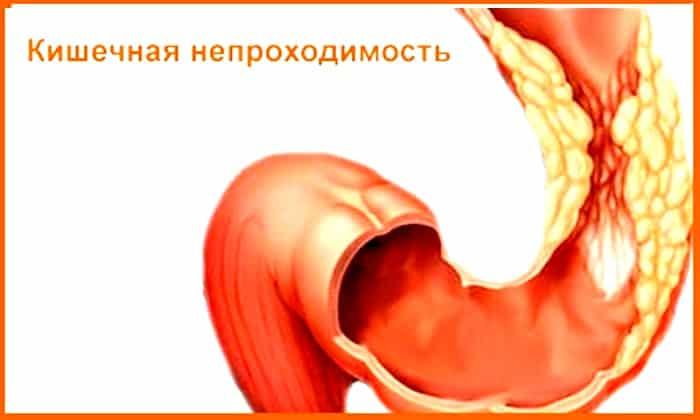 Непроходимость кишечника является противопоказанием к приему препарата
