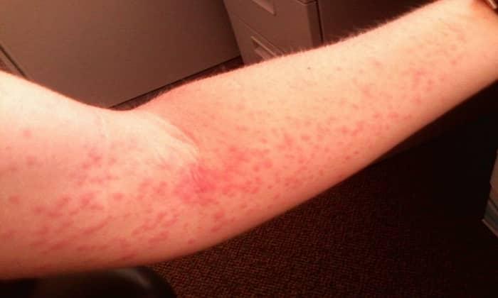 Препарат может вызывать побочное явление как аллергическая сыпь