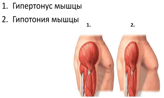 При терапии данным средством могут развиться снижения мышечного тонус