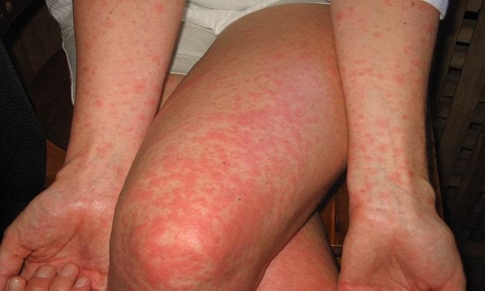 Аллергическая реакция на препарат проявляется сыпью на коже