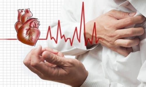 При острых инфарктах миокарда Мексидол может назначаться дополнительно к основной терапии, при этом его доза рассчитывается исходя из веса пациента