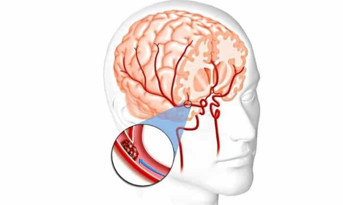 При острых нарушениях кровотока мозга показан к применению Мексидол