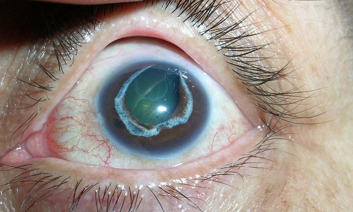 В составе комплексного лечения первичной глаукомы используют Мексидол