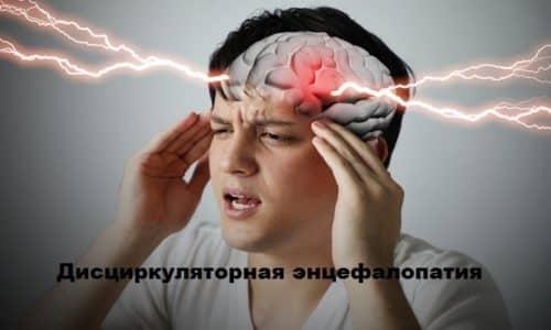 Профилактика дисциркуляторной энцефалопатии проводится внутримышечным курсом