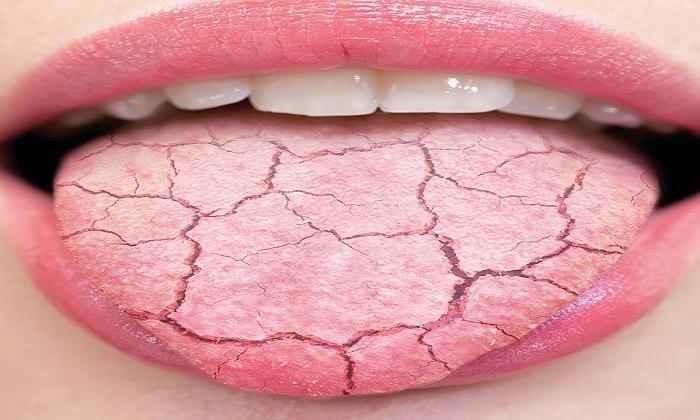 Мексидол провоцирует возникновение сухости слизистых оболочек рта