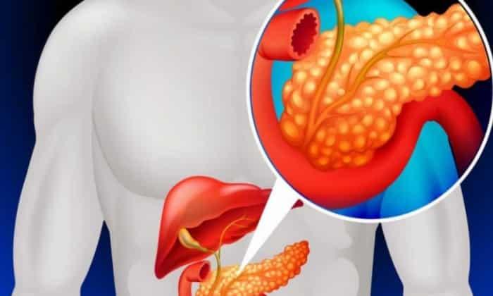 Дротаверин Авексима помогает снять спазмы гладкой мускулатуры внутренних органов моче- и желчевыделительной системы при панкреатите