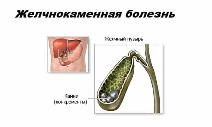 Панкреатин не назначают при желчнокаменной болезни