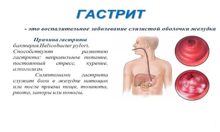 Препарат целесообразно использовать в случае устранения негативных проявлений, а иногда и причин гастрита