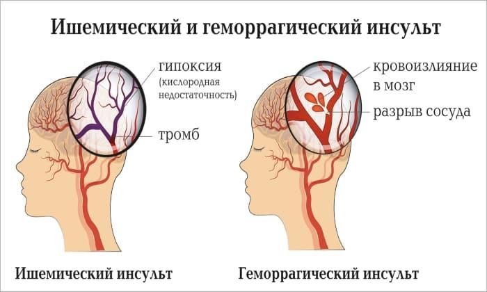 Оба препарата назначают при инсульте