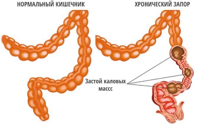 Препараты ферментной группы применяются при запоре