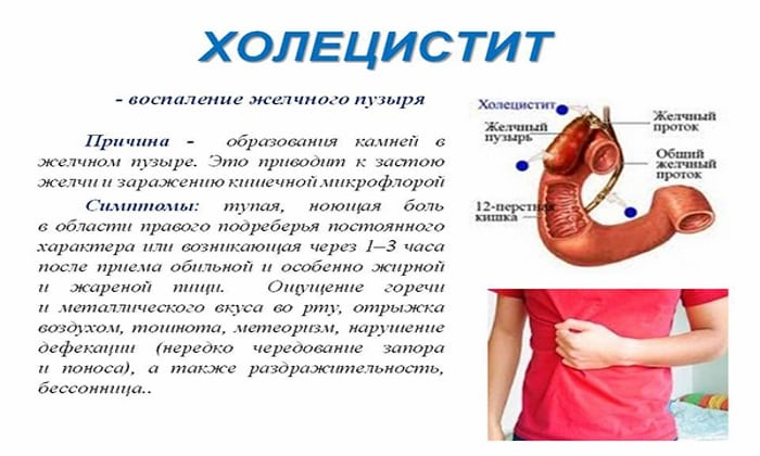 Препараты ферментной группы применяются при хронических болезнях желчного пузыря