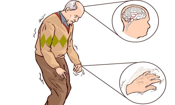 Мексидол назначается при болезни Паркинсона