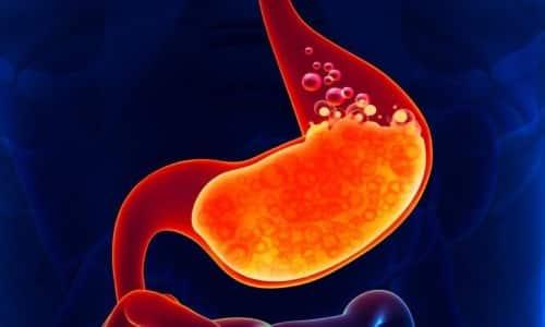 Лекарства Алмагель и Алмагель Нео предоставляют защиту слизистым оболочкам желудка и кишечника за счет обволакивающих свойств
