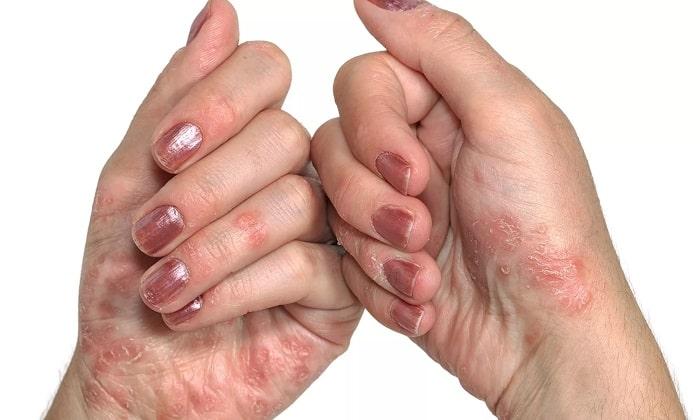 Препарат Артромакс применяют при псориазе