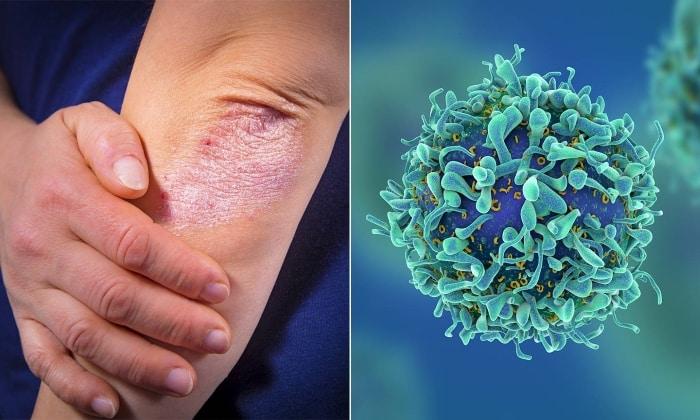 Препарат целесообразно использовать в случае лечения патологических состояний с проявлениями на наружных покровах