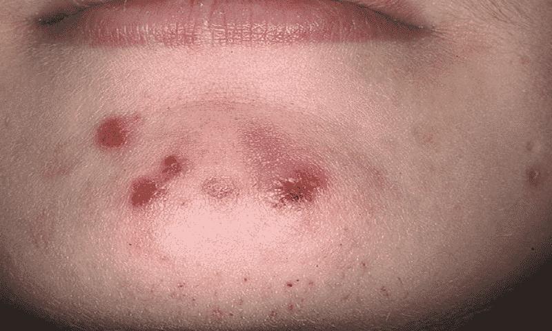 Прием препарата может спровоцировать появление кожной сыпи